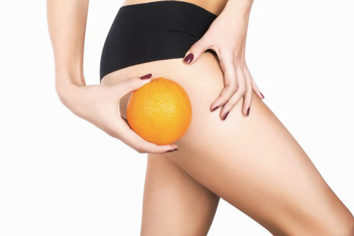 i rimedi contro la cellulite Life&People Magazine LifeandPeople.it